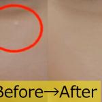目や顔周りの白いポツポツは病気?皮膚科&自分で治療手術し消す方法